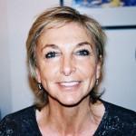 Botox injections london by Dr Vidal