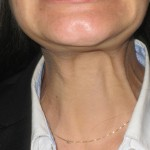 neck before botox injections london dr vidal