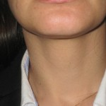 neck muscle relaxed after botox injections london dr vidal