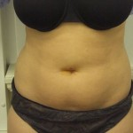 before laser lipo london. Dr Vidal.co.uk