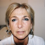 Before Botox injections london dr vidal