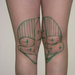 knees drawings for laser lipo