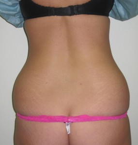 waist before laser lipo by dr vidal