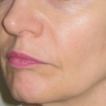 After Sculptra filler injection. Dr Vidal