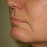 left side before lip augmentation by filler injection Dr Vidal