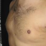man gynecomastia 3 weeks after laser liposuction