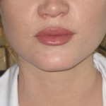 lip filler london after lip augmentation filler and lip enhancement. dr Vidal