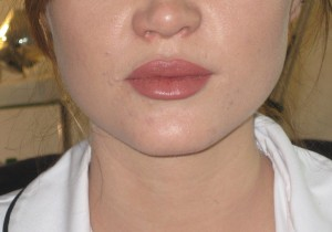 after lip augmentation filler and lip enhancement. dr Vidal