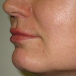 left side after lip augmentation by filler injection dr vidal
