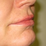 right side after lip augmentation by juvederm Dr Vidal