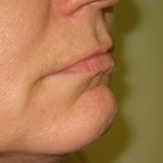 right side before lip augmentation by juvederm Dr Vidal