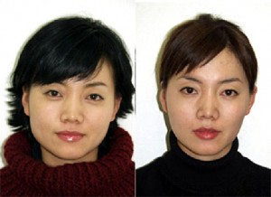 jaw reduction botox dr vidal