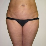 liposuction clinic central london. Dr Vidal
