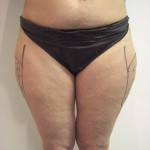 liposuction clinic central london.Dr Vidal