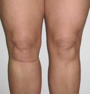 After knee liposuction. Dr vidal.London.