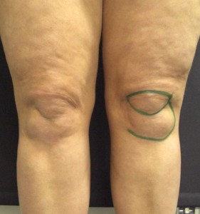 knee liposuction before. Dr Vidal. London.