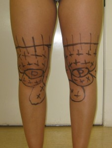 drawing for knee liposuction.