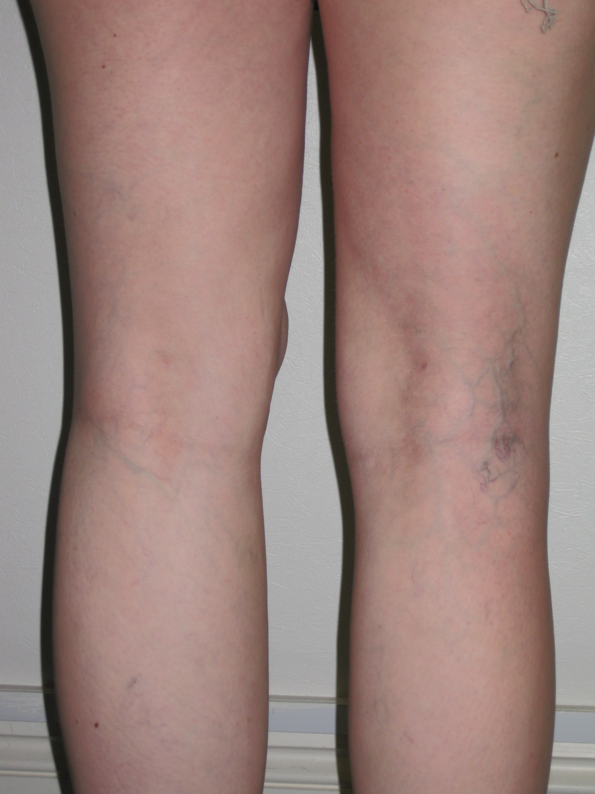 Knee liposuction : sculpting and refining