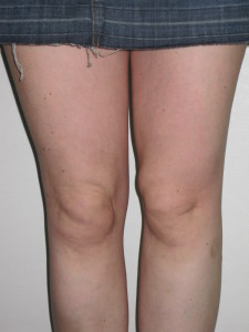 knee liposuction result. Dr Vidal. London.