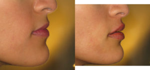 Lips before after lip filler.Dr Vidal London