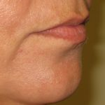 lips before picture. Lip filler Dr Vidal London